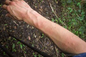 Saving Infinity - Mosquito bites